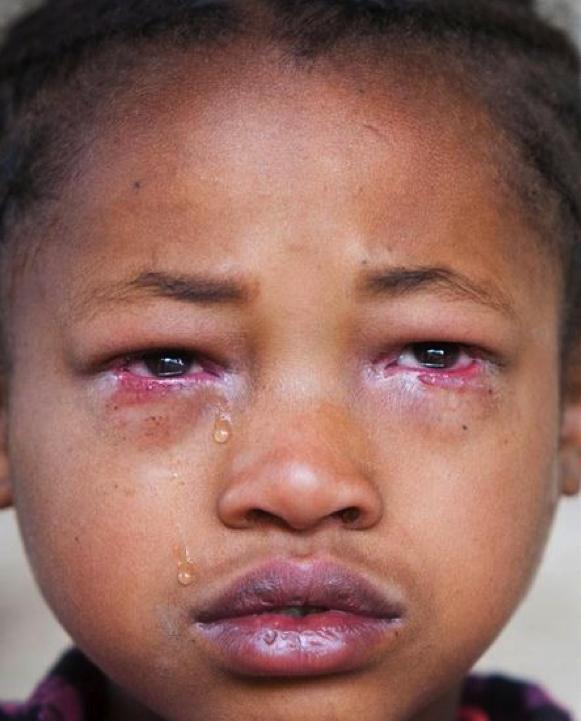 Trachoma Blindness Trachoma The Lancet Clinic Trachoma