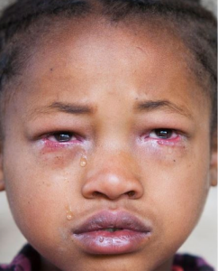 Trachoma affected 9-yr old girl (Credit: Sodere)