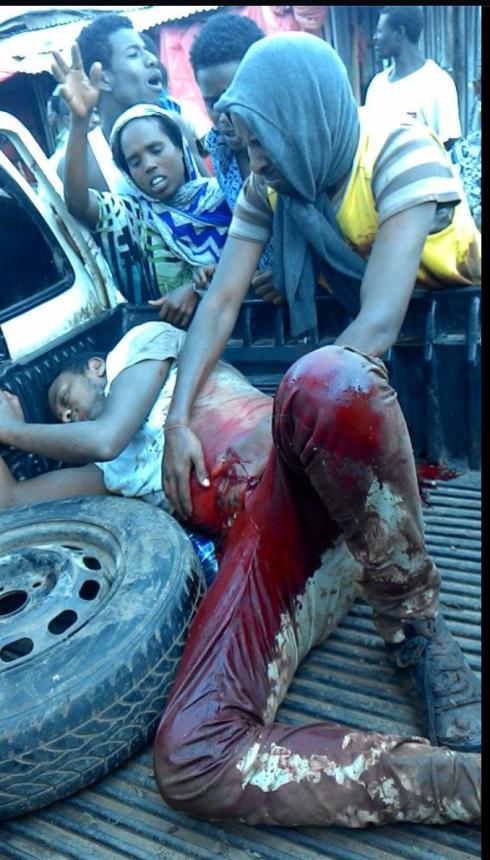 SHOT BY TPLF FORCES IN EAST HARRGE TODAY (JM Facebook)