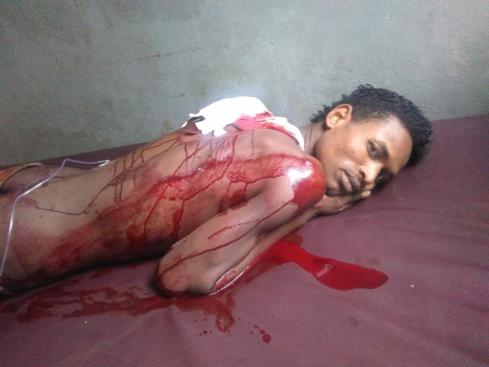 በየዕለቱ እንደዚህ በአጋዚ የሚጨፈጨፉትን ኦሮሞ ወጣቶች፡ ጄኔራል ጻድቃን በጭዳ መልክ የሚመለከቷችው ከሆነ፡ የእርሳቸው ጥረት የኢትዮጵያን ሕዝብ ችግሮች በሰላማዊ መንገድ የመፍታት ሃሣብ አንግቦ ነው የተነሣው የሚለውን ጥያቄ ላይ ይጥለዋል። ይህ ወጣት ዛሬ ነው በጥይት የተመታው፤ ደሙ እየፈሰሰ፤ እርሱም እያስተዋለ ያልንዳች ዕርዳታ ለማሸለብ በመዘጋጀት ላይ ነው - Waiting for death while bleeding from Agazi bullet  (FB/JM)